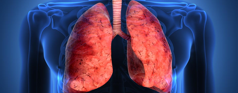 Fibrosis-Pulmonar