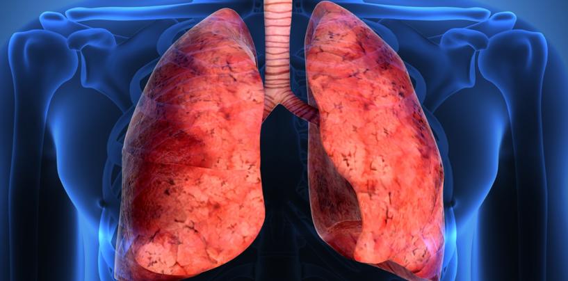 Nueva terapia que alargará la vida a pacientes de fibrosis pulmonar