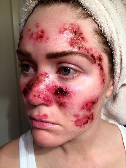 cancer-de-piel-skin-cancer